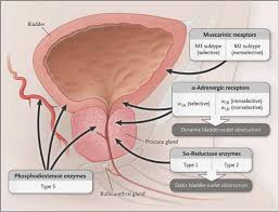 benign prostatic hypertrophy dipnb clinical tutorials general