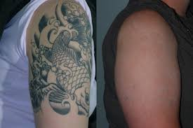 laser tattoo removal 6 tattoo removal lasers including picosure