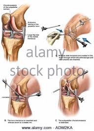 Right Knee Anatomy Right Knee Ligaments Stock Photo Royalty Free Image 66989778 Alamy