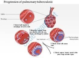 powerpoint design lungs 0914 progression of pulmonary tuberculosis medical images for