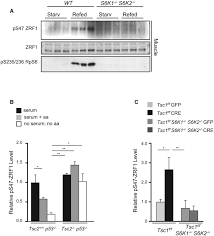 zrf1 is a novel s6 kinase substrate that drives the senescence