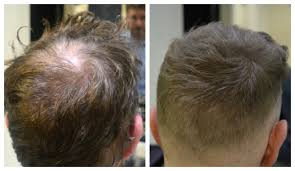 before and after thinning mens haircut mr by jamie stevens products to combat thinning hair that