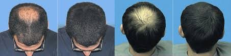 haircuts for crown bald spots pictures on bald spot hair styles cute hairstyles for girls