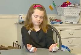 young little girls src girl 11 suffers major burns after making homemade slime people com