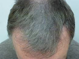 New Hair Loss Treatment Mhs Gallery Hair Loss Before And After Photos