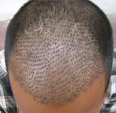 hair transplant america hair transplant fue method fue hair transplant service jshttc
