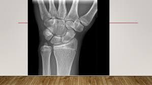 Radiology Anatomy Radiological Anatomy For First Years