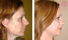 feminization hair facial feminization procedures mdm marcelo di maggio surgery