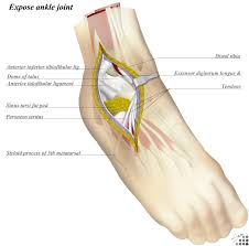 Ankle Anatomy Ligaments Ankle Anterolateral Approach Approaches Orthobullets Com