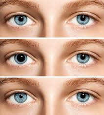 Cataract Leads To Blindness Due To Anisocoria Why Is One Pupil Bigger Than The Other