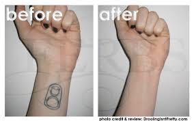 this is one of the oldest methods of tattoo removal and while it