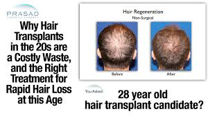 why hair transplants don u0027t work in the 20s and treatment to stop