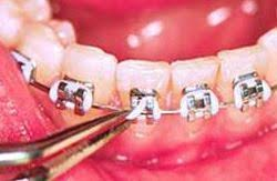fix braces smile logic orthodontics south
