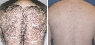 laser hair removal with the palomar icon aesthetic system is the