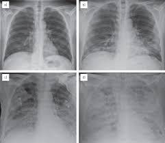 overview of current lung imaging in acute respiratory distress