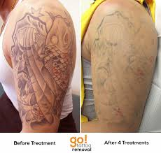 63 best tattoo removal before and after images on pinterest