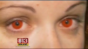 fda issues warning about colored contacts cbs baltimore