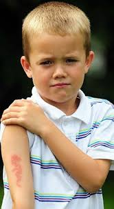 seven year old boy left burned blistered and scarred by henna