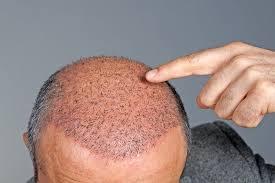 hair plugs for men do hair transplants work viviscal healthy hair tips