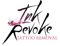 ink revoke boulder tattoo removal experts