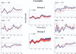 stability of the cortical sensory waveforms the p1 n1 p2 complex