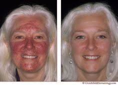 intense pulsed light therapy intense pulsed light rosacea treatment ipl may well be one of your