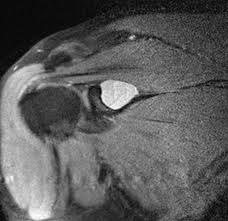 Innervation Of Supraspinatus Supraspinatus Muscle And Tendon Radiology Reference Article