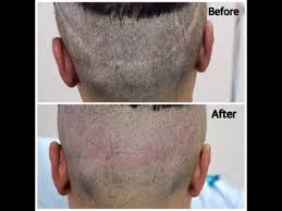 fut hong kong hair transplant hair transplant scar repair in los angeles fuss strip scar