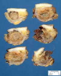 pilonidal cyst location pilonidal cyst hairball thewealthbuilding