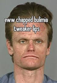 Chapped Lips Meme - chapped bulimia tweaker lips