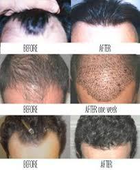 prescreened hair transplant physicians hair restoration the rain the rainbow