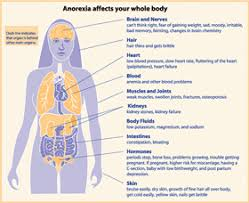 anorexia nervosa signs symptoms causes and treatment