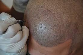 cosmetic tattoo joondalup eyebrows eyeliner lips u0026 paramedical
