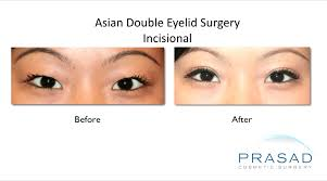 garden city family doctors opening hours asian eyelid surgery double eyelid surgery specialist ny