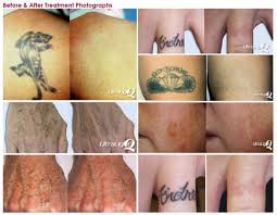 tattoo temoval before and after pictures before and after
