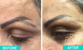 permanent makeup removal arviv medical aesthetics