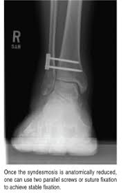 Ankle Ligament Tear Mri Mastering The Treatment Of High Ankle Sprains Podiatry Today