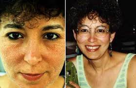 eczema food allergies u2013 remove offending foods from your diet