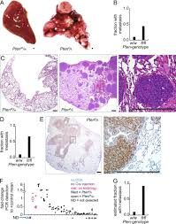 modeling synovial sarcoma metastasis in the mouse pi3 u2032 lipid