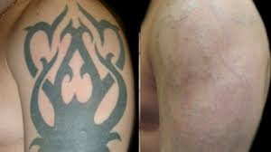 laser tattoo removal full medical procedure new video mp4 youtube