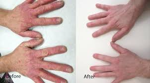 light treatment for scalp psoriasis uvb light therapy for psoriasis led hands before and scalp