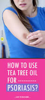 Tea Tree Oil Hair Loss Best 25 Tree Oil Ideas On Pinterest Tea Tree Oil Hair Tree Of
