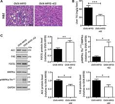 hepatic fgf21 mediates differences in high fat high fructose