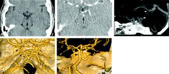 Ct Anatomy Of Brain Ppt Anatomy And Frequency Of Large Pontomesencephalic Veins On 3d Ct