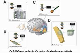 introduction to visual prostheses by eduardo fernandez and richard