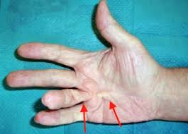 knoten handinnenfläche dupuytren sche krankheit einführung