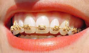 nickel free braces types of braces conroy macgilpin orthodontics