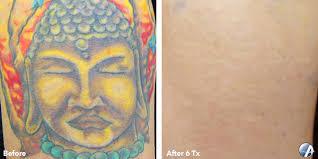 picosure tattoo removal dayton ohio 1000 geometric tattoos ideas