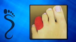 d i y relief for ingrown toenails saginaw mi foot doctor