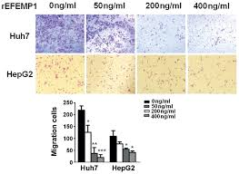 efemp1 inhibits migration of hepatocellular carcinoma by